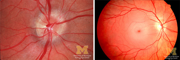 Papilledema and Retinal Artery Occlusion